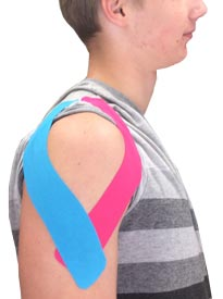 Deltoid Taping