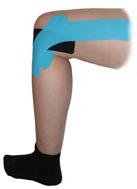 Outer Knee Taping