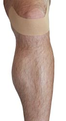 Patellar Tendonitis Taping