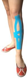 Shin Splint Taping