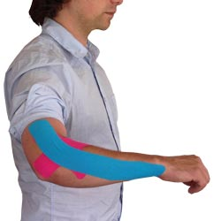 Tennis Elbow Taping